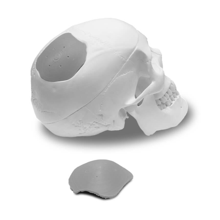 reinraum-skull-implant-k